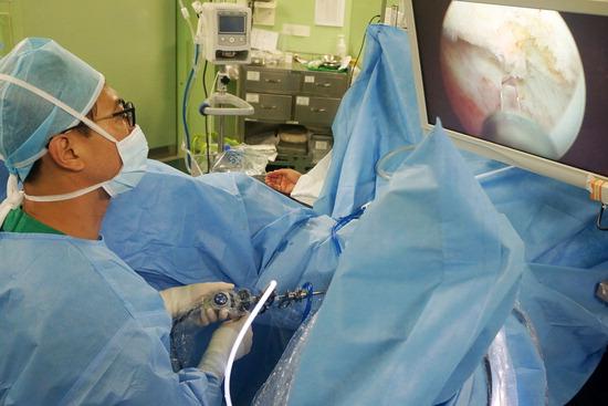 ▲ 고준성 가톨릭대학교 부천성모병원 비뇨기과 교수가 전립선비대증 레이저수술을 집도하고 있다.