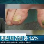 """녹농균, """"쿨하게 넘어가나"""" ,  네티즌들 """"합의사항인가 """""""
